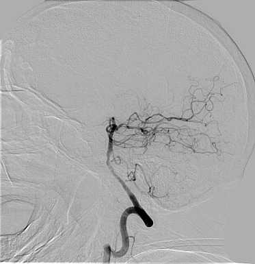 arteriogram_head